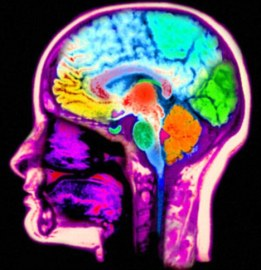 Magnetic resonance scan MRI of the head computer enhanced and colorized to show the normal anatomy of the brain and head